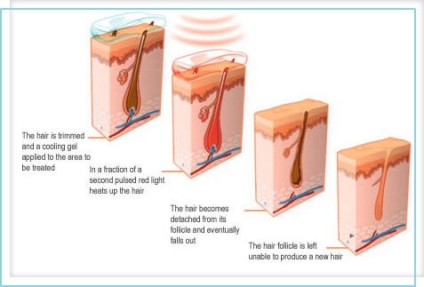 hair_removal_follicle